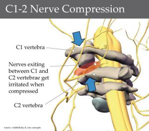 nerve-compression